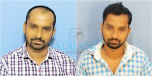 Radiance hair transplant center customers before and after images