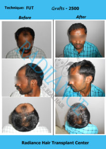 ANTHAIAH PASAM Radiance before after images