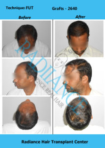 Ayub Sk Radiance before after images