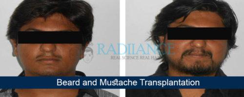 Beard-mustacheht2-500x200