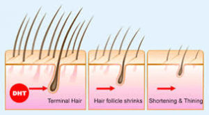 Hair Loss Treatment For Men and Hair Fall Treatment For Men