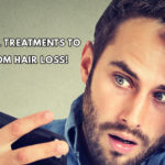 Non- surgical treatments to recover from hair loss