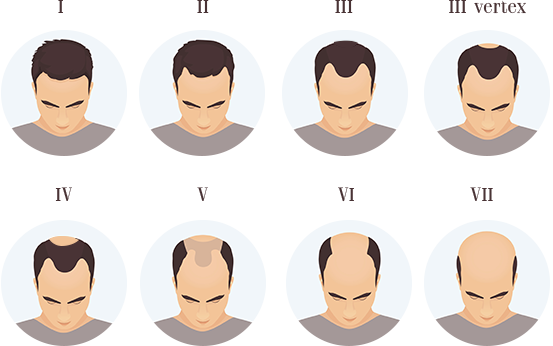Hair loss quiz