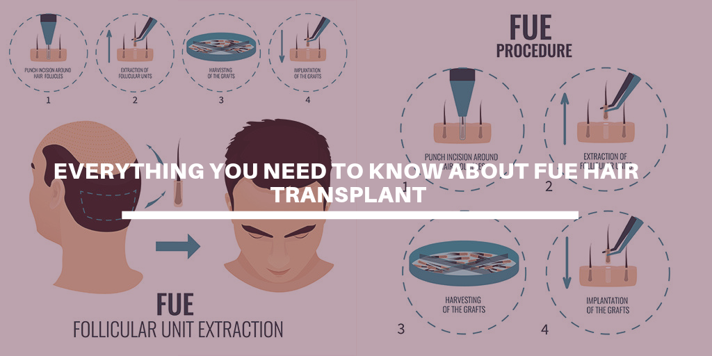 Everything you need to know about FUE Hair Transplant